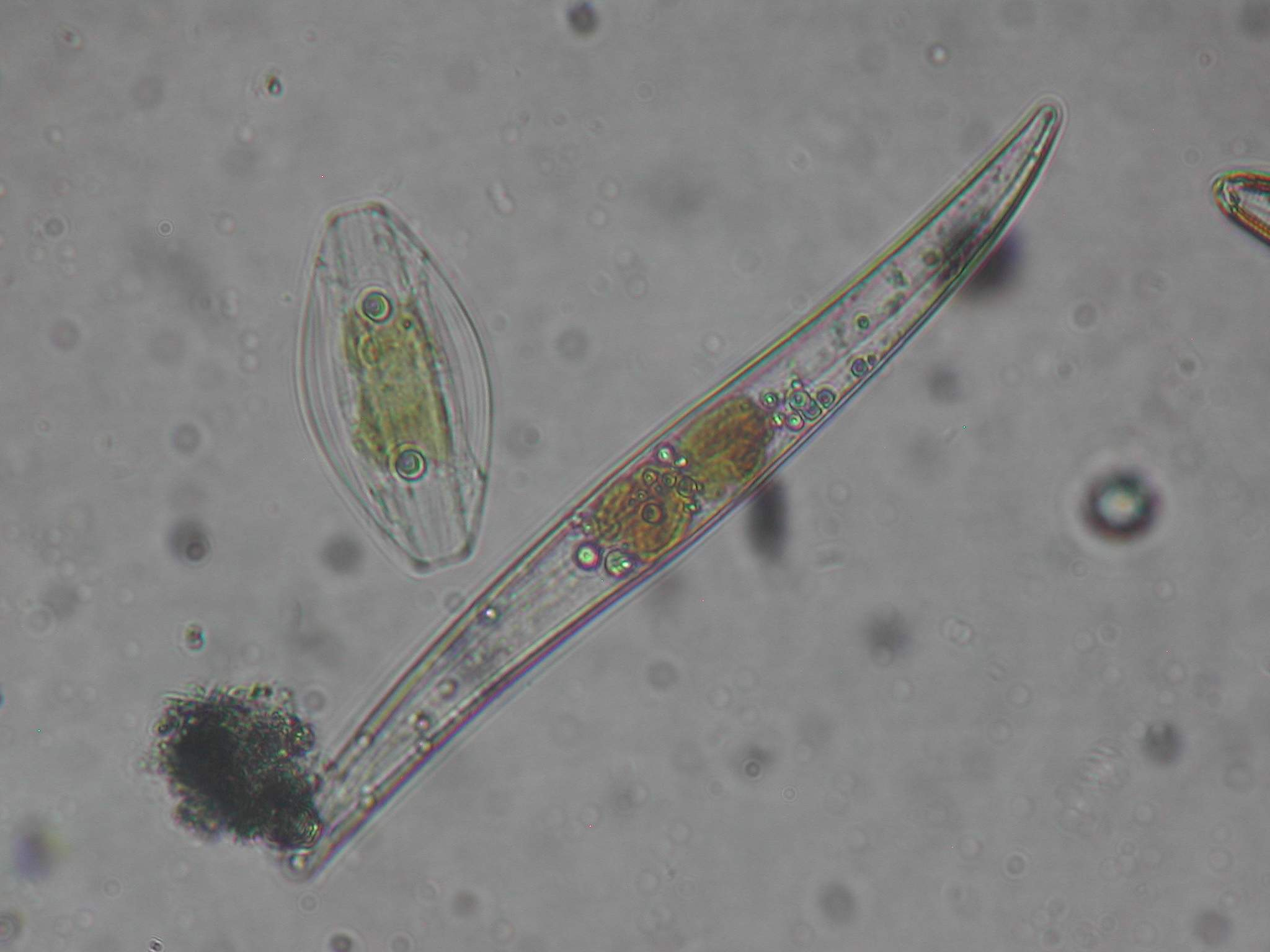 Diatom CellDiatom Cell